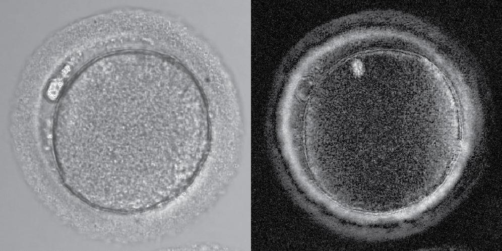 Human Oocytes - Alex Laude & Dimitrios Kalleas Image 1