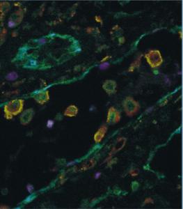 Choice of Illumination System & Fluorophore for Multiplex Immunofluorescence on FFPE