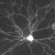 CoolLED pE-4000 working with cultured hippocampal neurons.